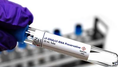 Liquid biopsy and cfDNA